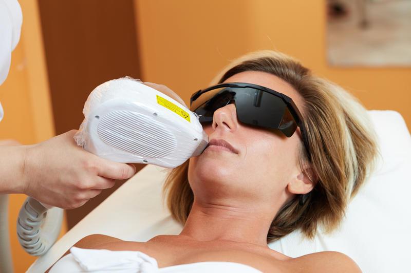 Epilazione laser nella zona bikini che e