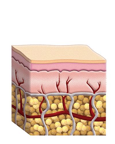 Tessuto Adiposo dopo trattamento